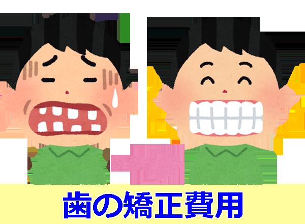歯の矯正費用